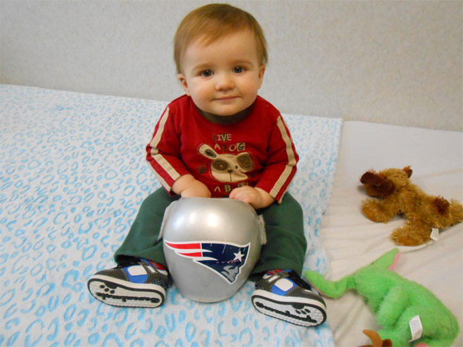 This is a photo of a child with a cranial remodeling helmet.