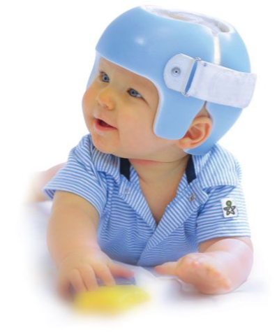 This is a photo of a STARband cranial remolding helmet.